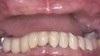 Dentist In Tonawanda NY