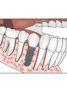Benefits Of Dental Implants At South Loop Dental Specialists