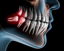 Choose The Best Dental Implants Service Centre - East Village Dental Centre