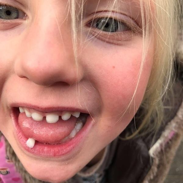Elja (6) kwam vandaag met deze bungelaar uit school. Twee uur later, in de auto, kwam hij eruit. Thuis heeft ze hem gelijk in een potje gedaan eb vannacht mag hij onder haar kussen. En dan is het wachten tot de tandenfee langs komt.